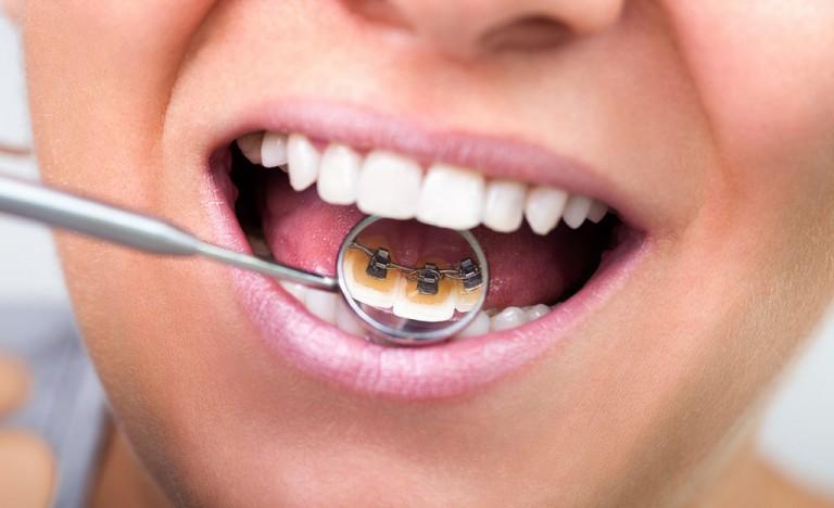 Lingual-Orthodontics-A-hands-on-workshop